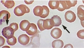 The slide shows blood cells contaminated by lead.